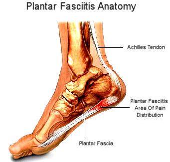 83f58-plantar-fascia